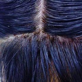 irritación del cuero cabelludo